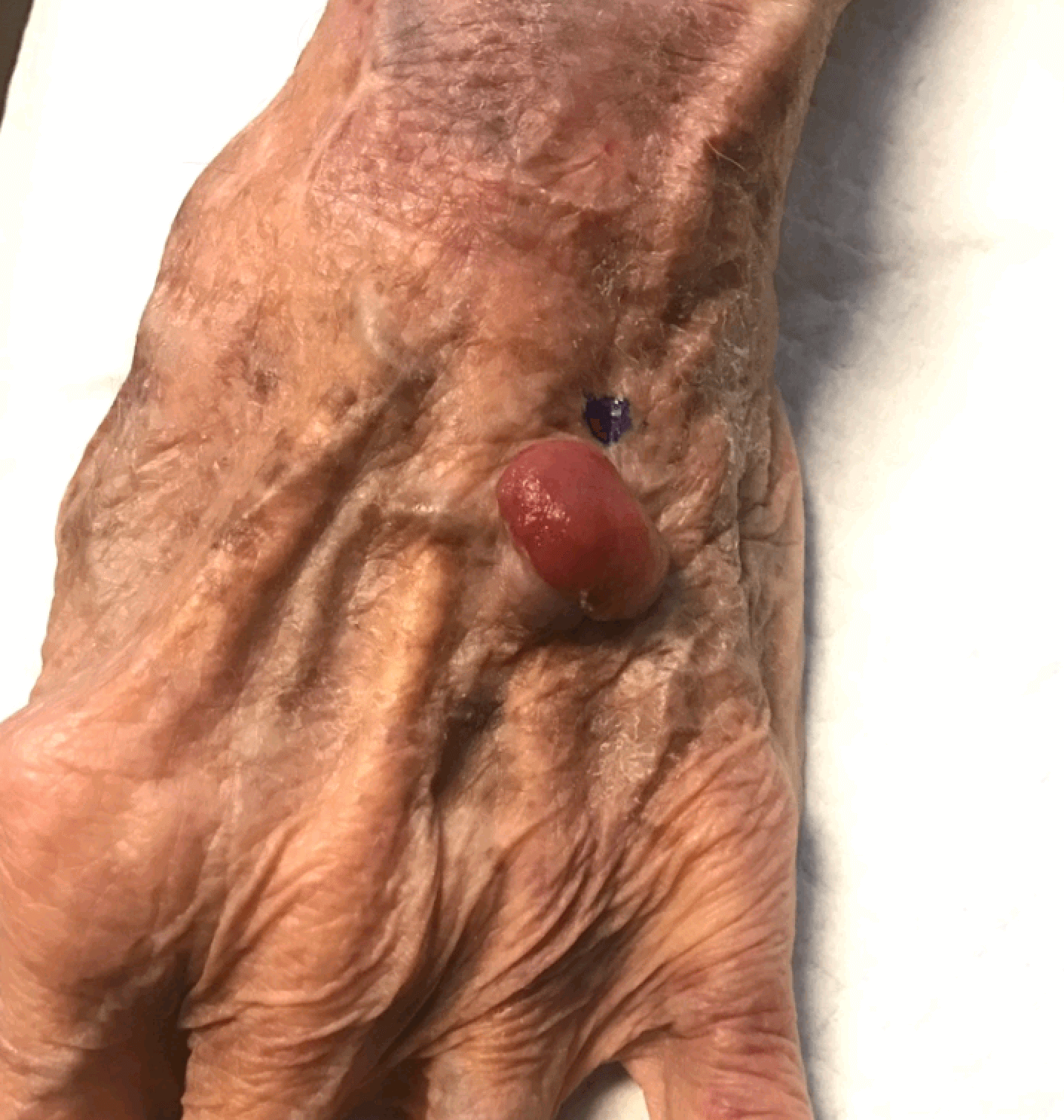 Large Melanoma- Cancer Removed Before