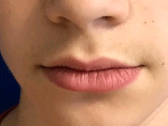 Upper lip mole excision After