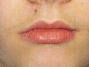 Upper lip mole excision Before