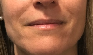 Nasolabial fold filler After