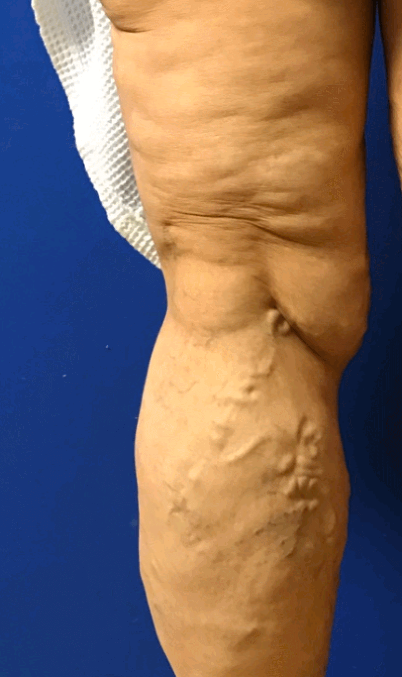 Varicose Vein Removal Before