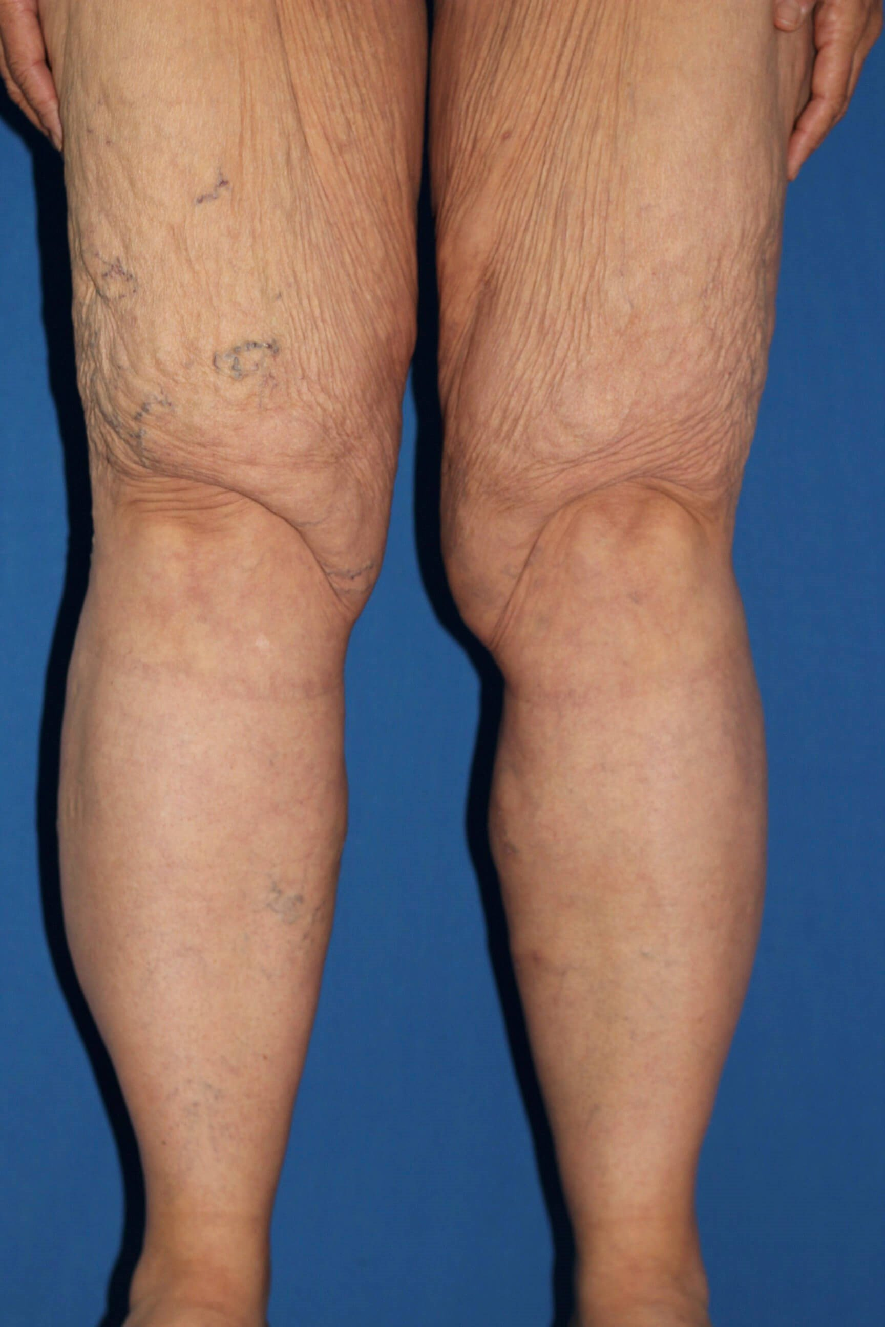 Varicose Vein Removal After