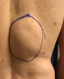 Large Lipoma Removal Before