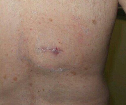 Large Lipoma Removal