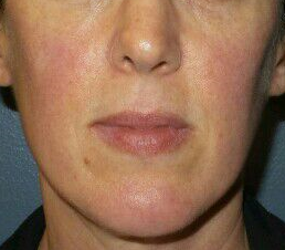 Great results IPL for Rosacea Before