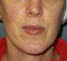 Great results IPL for Rosacea After