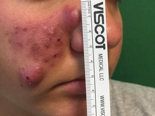 severe cystic acne