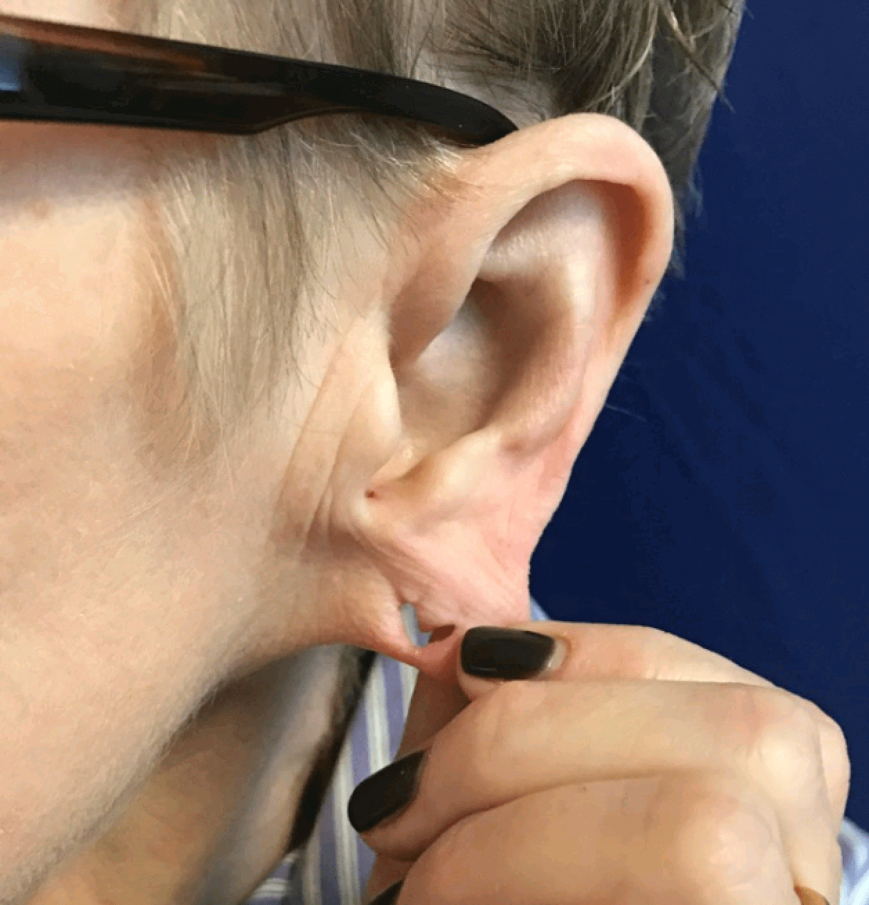 Ear lobe repair Before