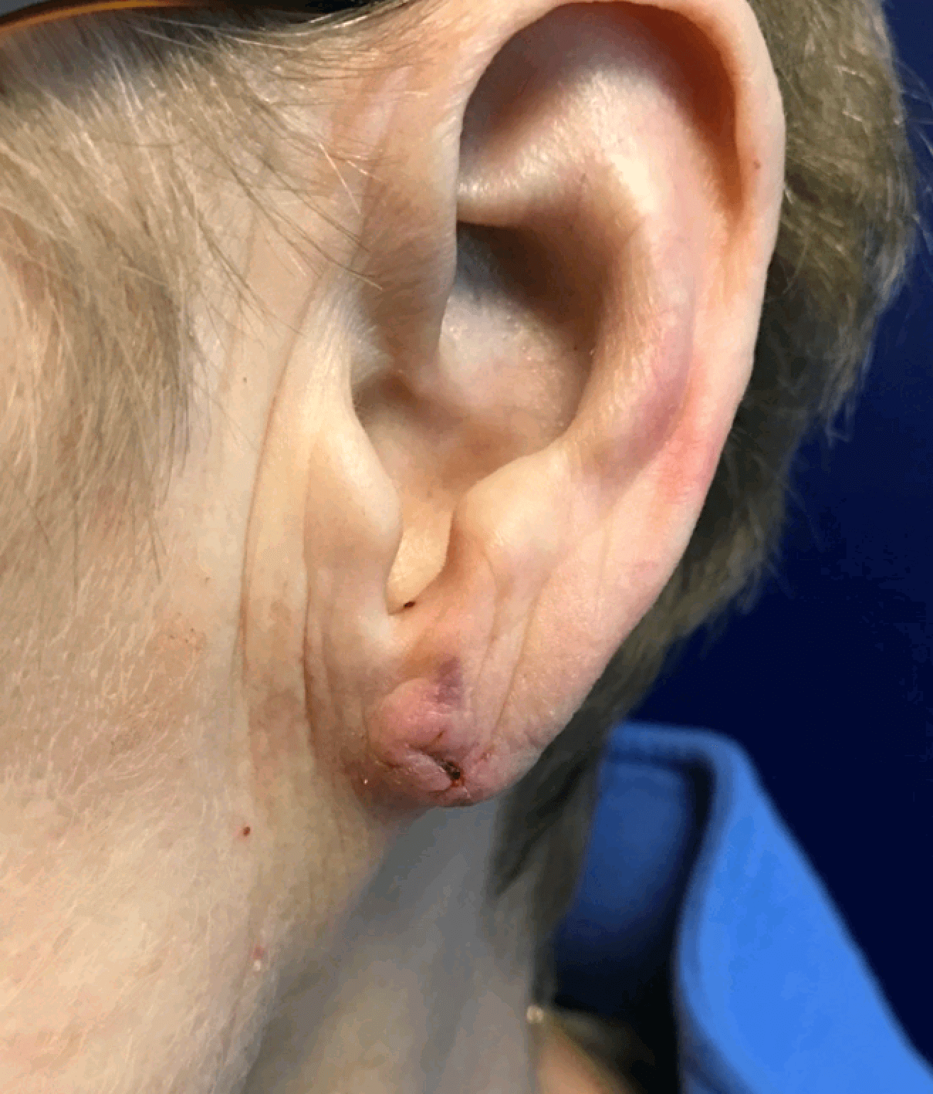 Ear lobe repair After