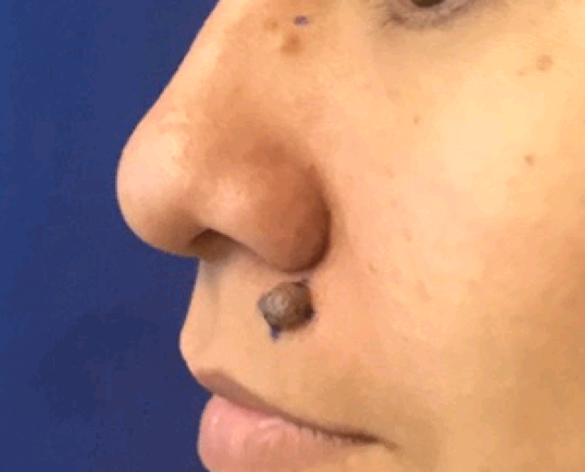 Large mole removal on face Before