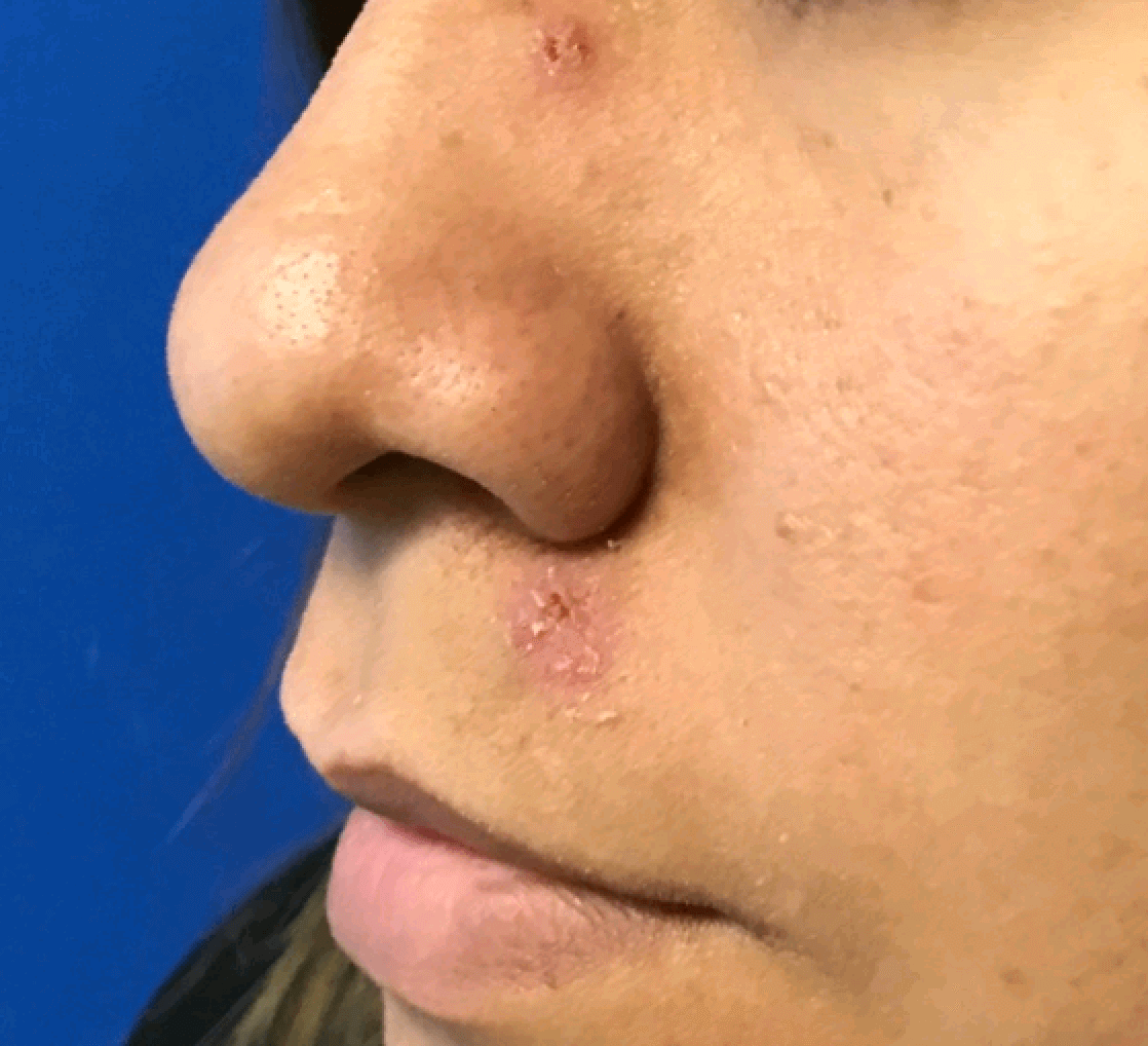 Large mole removal on face After