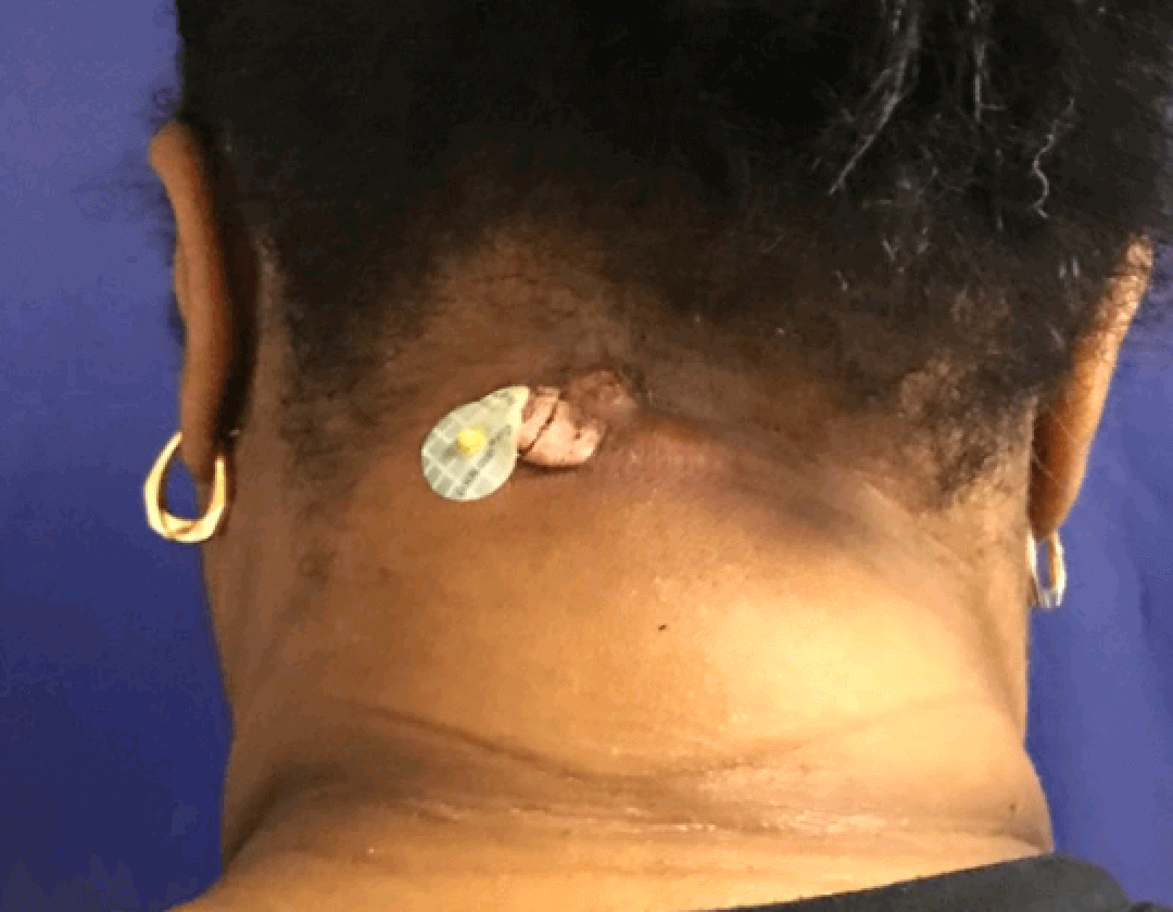 Infected sebaceous cyst Before