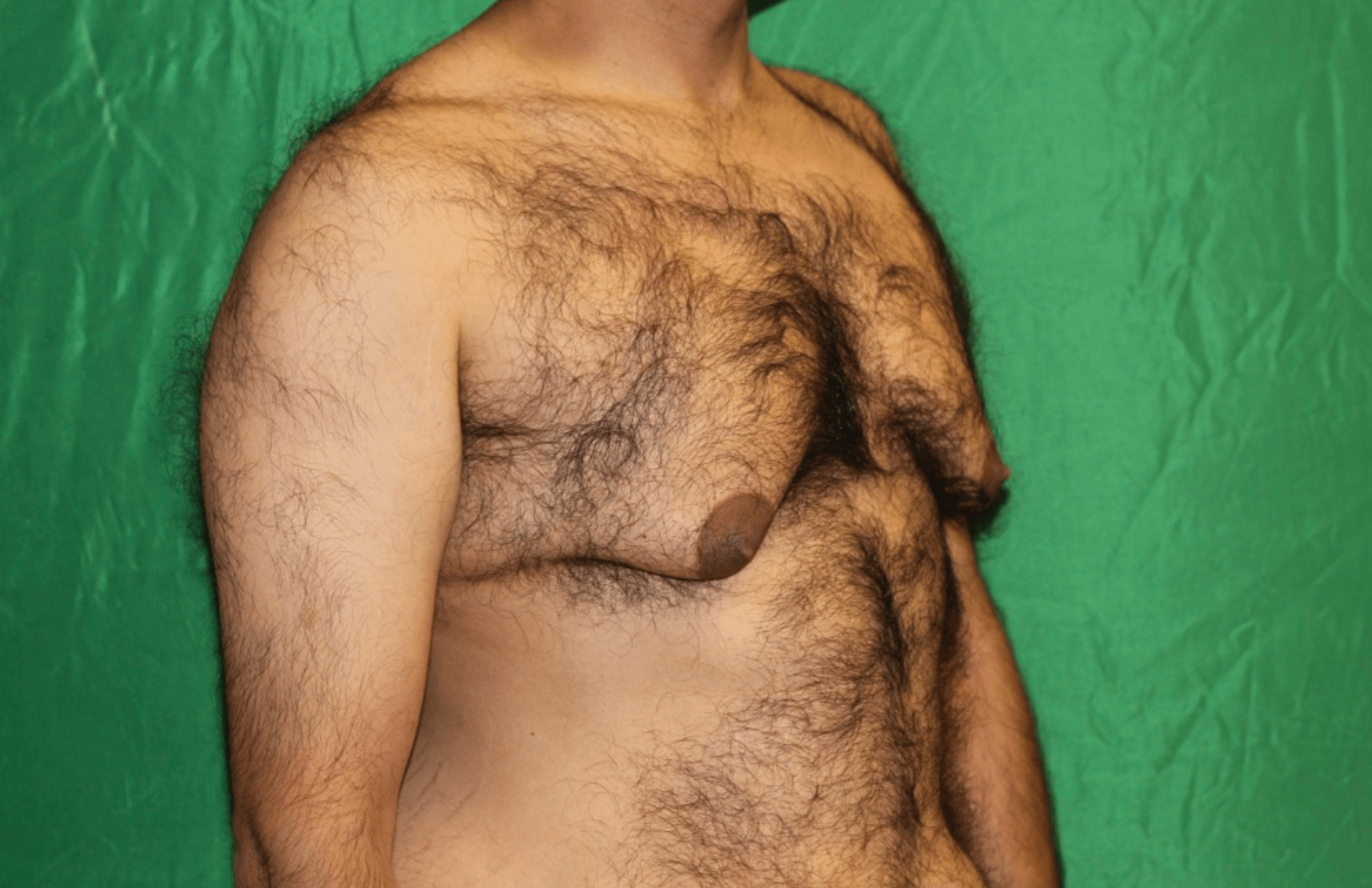 Male Breast Reduction Before