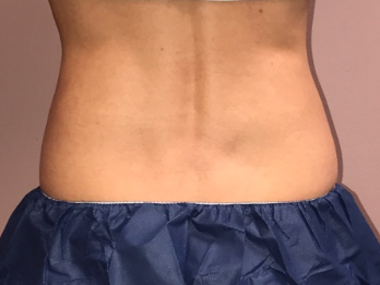 CoolSculpting of the Flanks After12 weeks