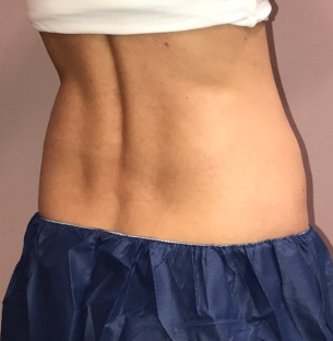 CoolSculpting of the Flanks After 12 weeks