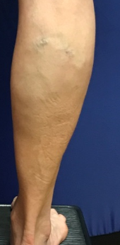 Varicose Vein Before