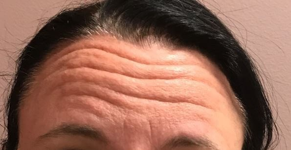 Forehead Before and After Before