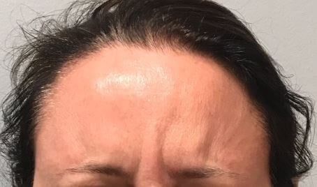 Dynamic Glabella After