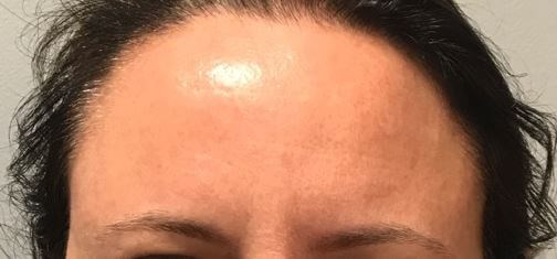 Static Botox Before and Afters After