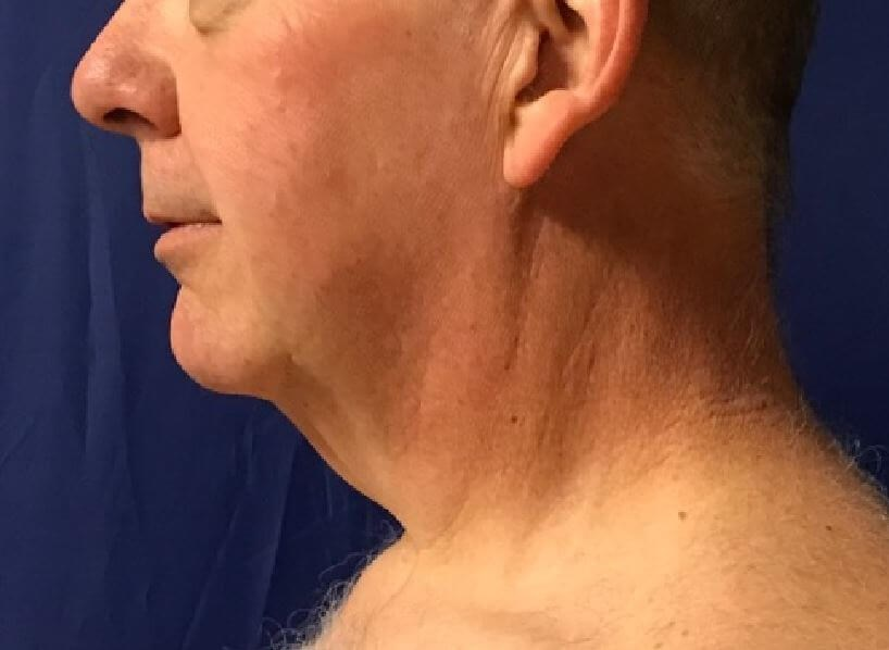 Youthful Neck: Precision TX Before