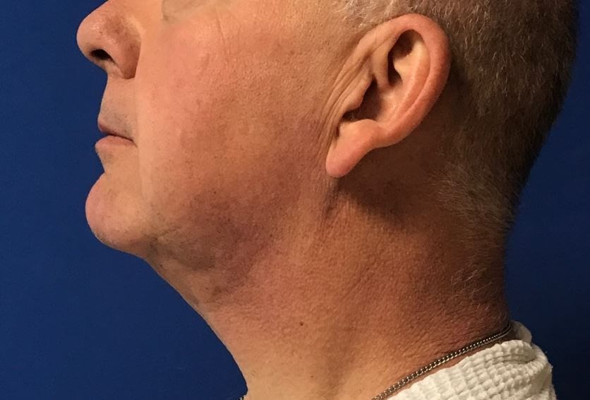 Youthful Neck: Precision TX After