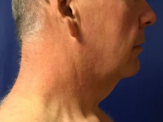 Right View Neck Liposuction Before