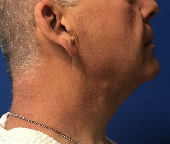 Right View Neck Liposuction After