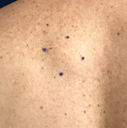 Lipoma removal on back Before