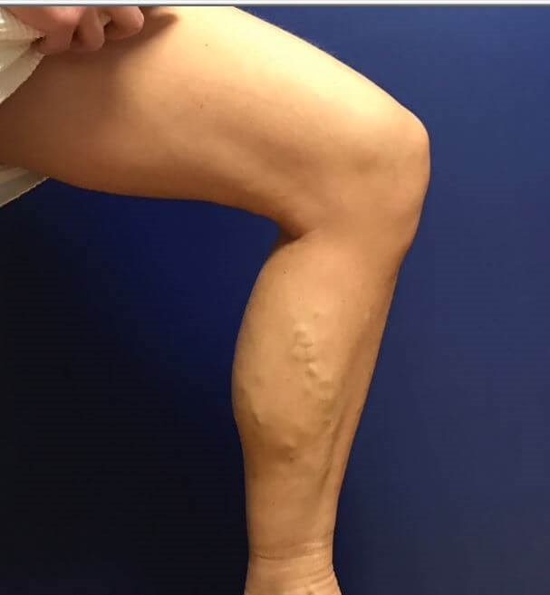 Phleb Alleviates Painful Veins Before