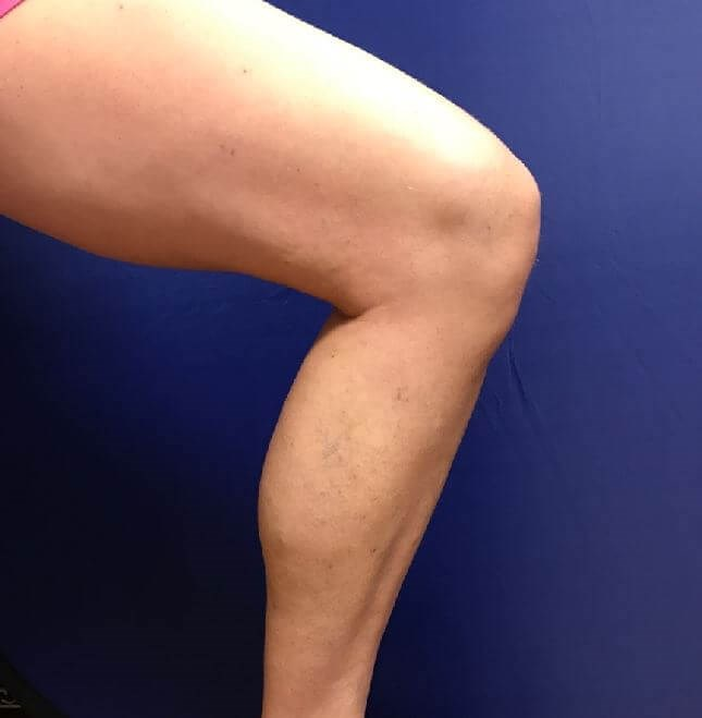 Phleb Alleviates Painful Veins After