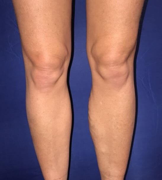Before & After: See Left Calf Before