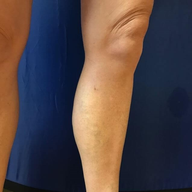 Before & After: See Left Calf After