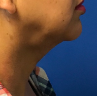 Liposuction of Neck After