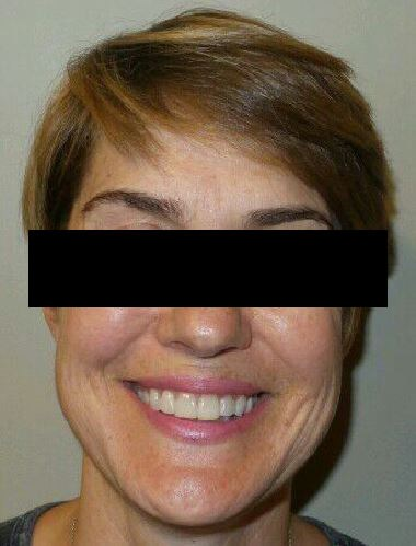 Beautiful Results, Happy Pt! After