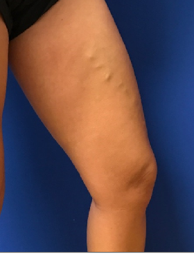 Goodbye Unsightly Veins Before