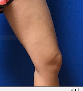 Goodbye Unsightly Veins After