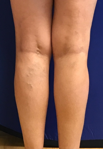Varicose Veins Before