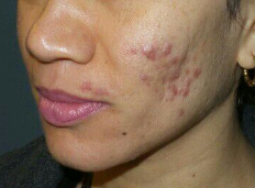 Amazing  Chemical Peel Results Before