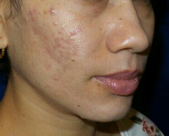 Amazing Chemical Peel Results After
