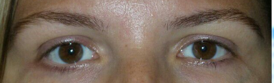 Fabulous Eye Lash Perm Results Before