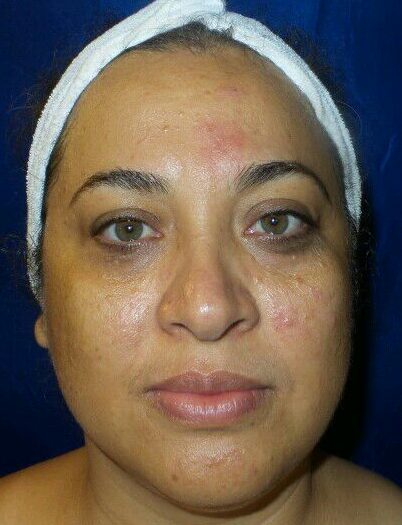 Excellent chemical peel result Before