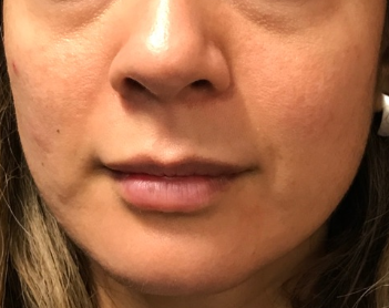 Volbella& Juvederm Before