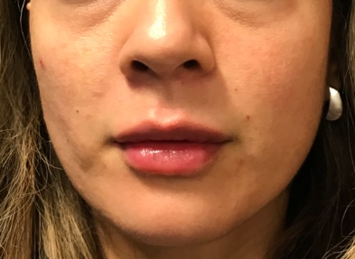 Volbella& Juvederm After