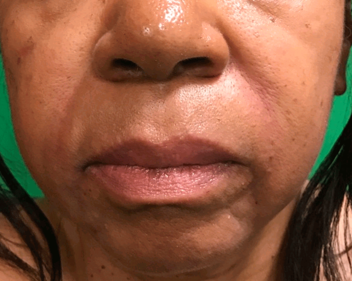 Filler nasolabial folds After