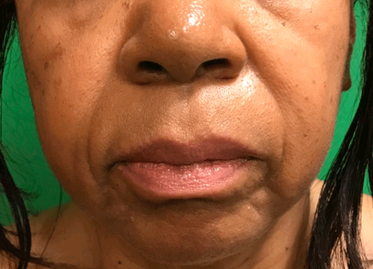 Filler nasolabial folds Before