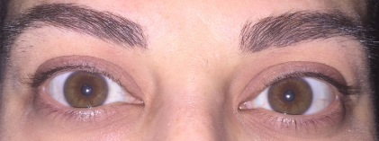 Lash Lift and Tint Before