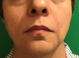 Juvederm Plus XC After