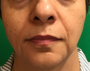 Juvederm Plus XC Before