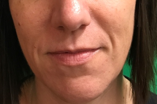 Nasolabial folds filler Before
