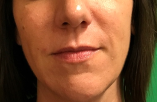 Nasolabial folds filler After
